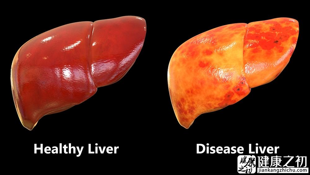 脂肪肝能逆转吗