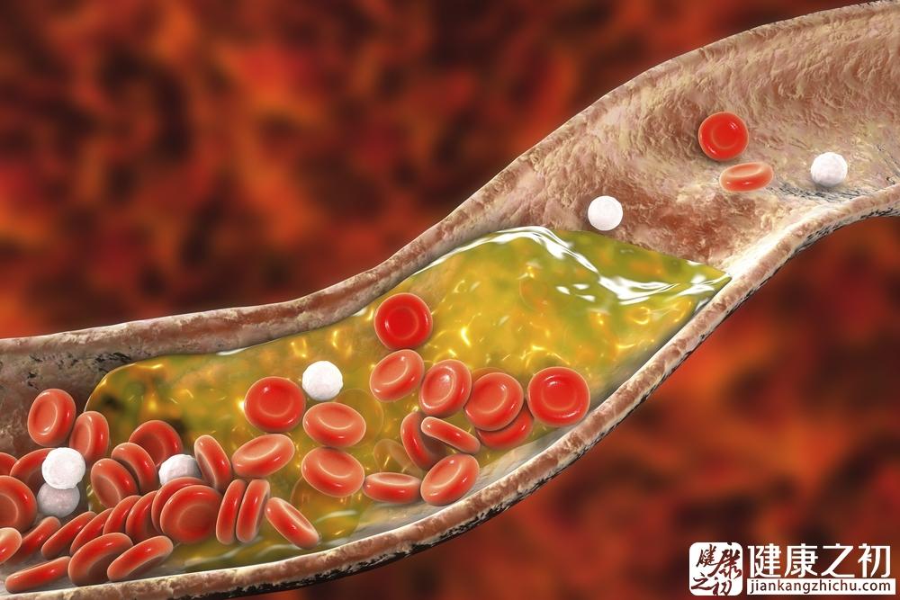 血管2.jpg