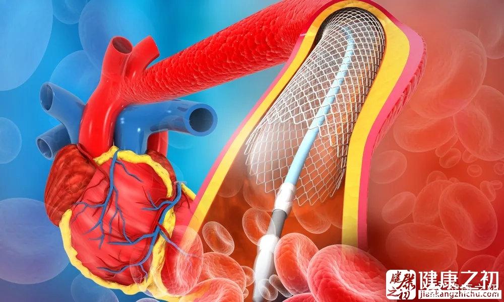 心脏支架.jpg